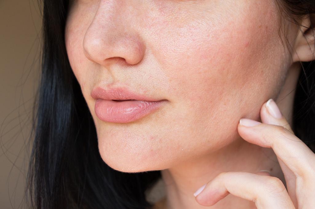 Чувствительная кожа лица
