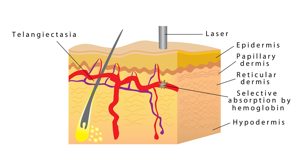 Схема сосудов кожи