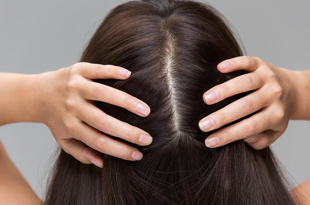 Какой у тебя тип кожи головы?